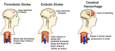 Stroke Types