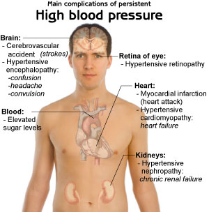 high blood pressure can be controlled High blood pressure can do worse things than kill you, you could become a vegetable, trapped in your own body, alive on the inside and dead on the outside too alive to let go, but, not dead enough to forget you should've taken the blood pressure meds.