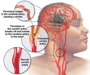 A transient ischemic attack (TIA)