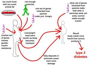 Diabetes Type 2 Causes