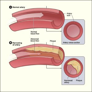 High cholesterol or plaque build-up in the arteries can block normal blood flow to the brain