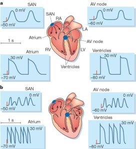 Artriall Fibrillation